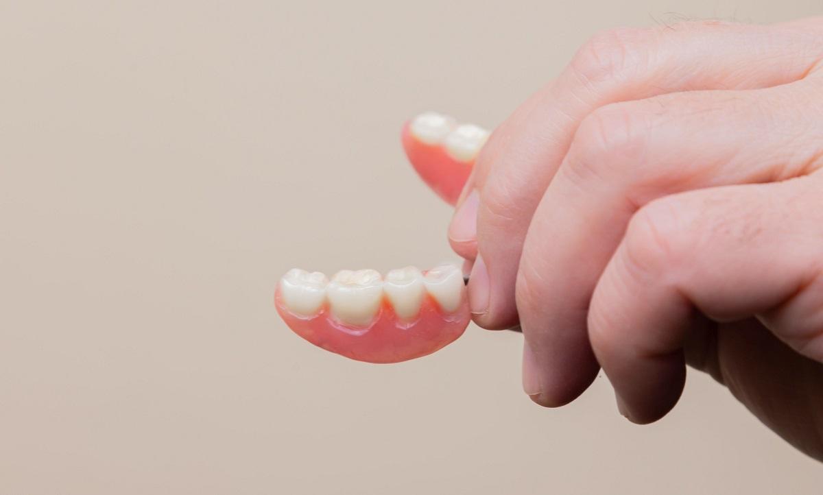 installazione dentiere roma